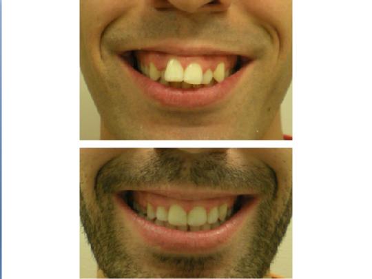 caso apiñamiento dental
