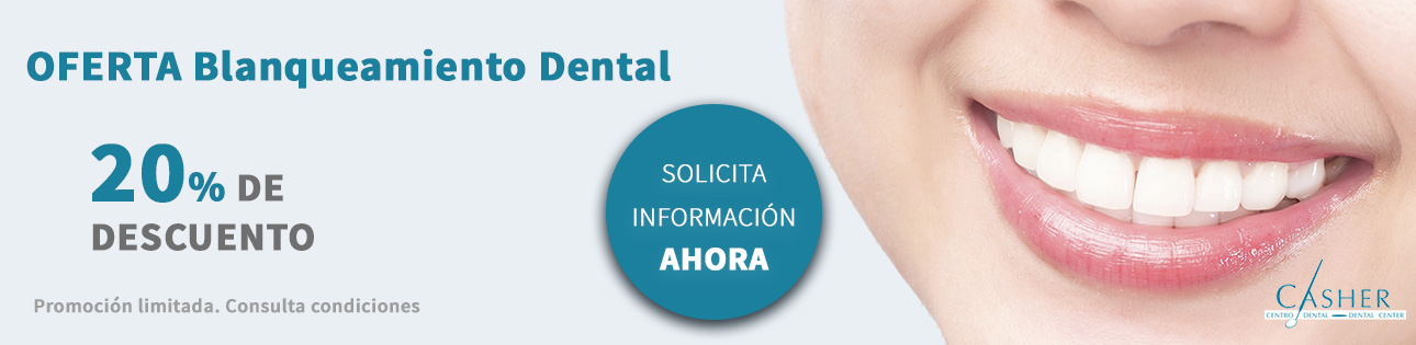 Blanqueamiento Dental Alicante